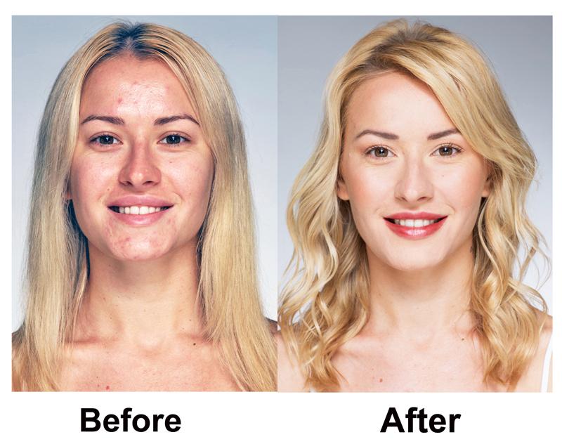 acne-solution.jpg